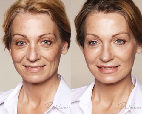Advanced Dermal Fillers | Dr Joanna Christou