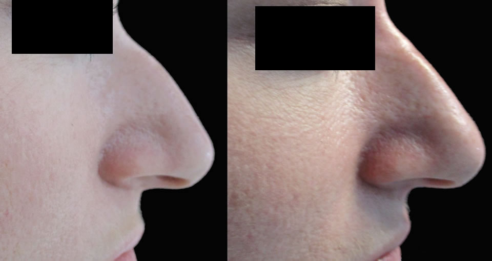 non-surgical-nose_ba