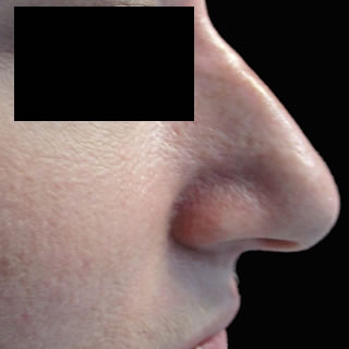 non-surgical-nose_job_thumb